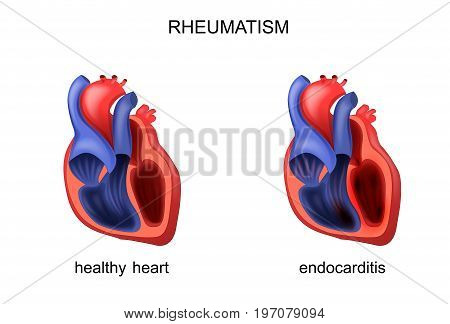 vector illustration of heart healthy and diseased endocarditis