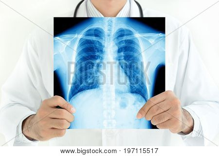 Doctor holding x-ray image of normal male chest