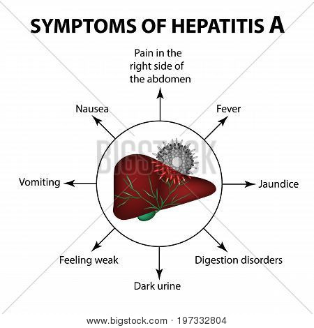 Symptoms of hepatitis A. Liver. Virus. Infographics. Vector illustration on isolated background