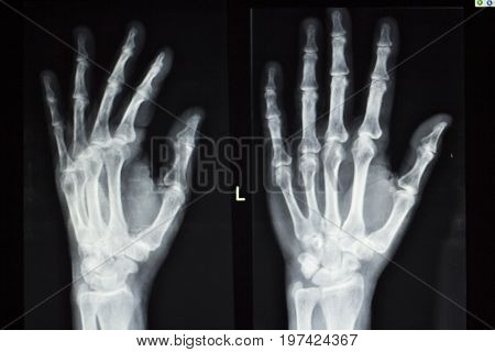 Hand Fingers Xray Test Scan