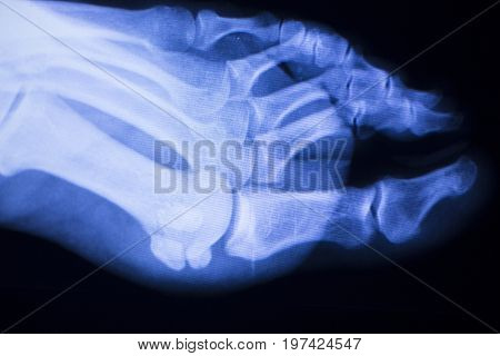 Foot Toes Xray Test Scan