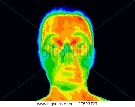 Thermographic photo of a human face showing different temperatures in a range of colors from blue cold to red hot. Red and orange around mouth could be a sign of periodontal disease with inflammation.