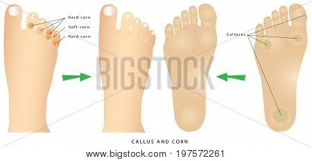 Corns and calluses. Foot with corns and calluses. Common foot problems - calluses and corns.