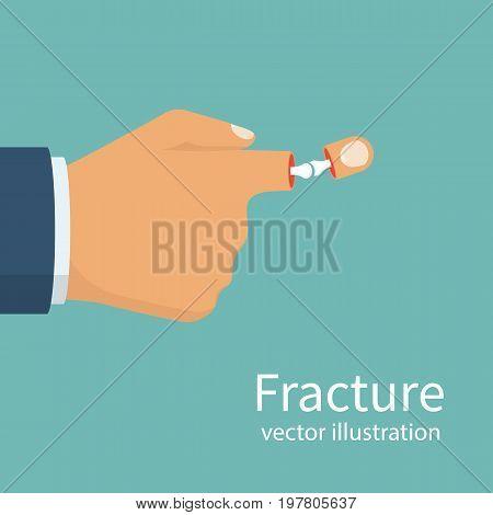 Fracture hand. Broken finger. Vector illustration flat design. Bone arm skeleton. Vector illustration flat design. Isolated on white background.
