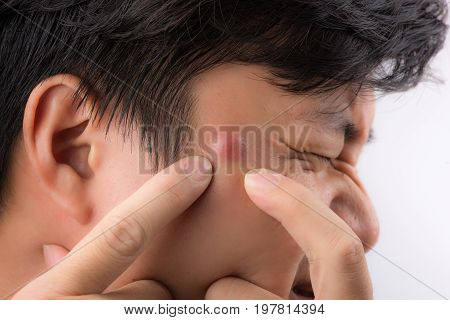 Close up photo of acne prone skin a man squeezing his pimple