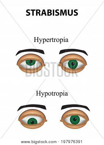 Strabismus. Hypertropia. Hypotropia. Infographics Vector illustration on isolated background