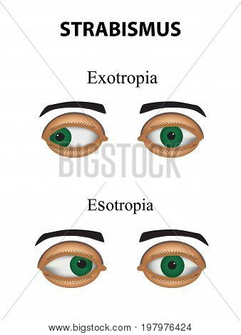 Strabismus. Esotropia. Exotropia. Infographics Vector illustration on isolated background