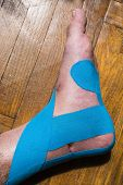 Elastic therapeutic tape (Kinesio Taping) applied to patient's leg. poster