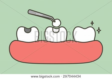 Step Of Tooth Amalgam Filling By Dental Tools To Protection Decay Tooth, Before And After - Teeth Ca