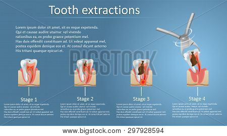 Tooth Extraction Concept Vector Poster Banner Template