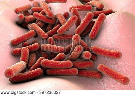 Rod-shaped Bacteria On Skin Or Mucous Membrane, Escherichia Coli
