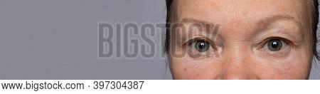 The Eyes Of An Old Man, An Aging Eye And A Body, Old Age. Cosmetics For Eyes, Cosmetology And Ophtha
