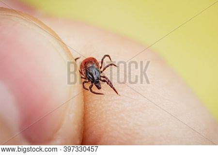 Dangerous Blood Sucking Tick Crawling On Human Skin Is Caught By Hand. Parasite Allergenic Beetle.