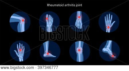 Rheumatoid Arthritis, Pain, Bone Disease Concept. Set With Spine, Knee, Ankle And Other Joint Icons.