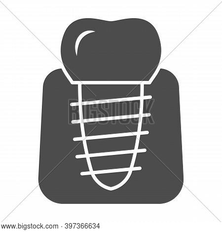Dental Implant Solid Icon, International Dentist Day Concept, Stomatology Of Implant Sign On White B