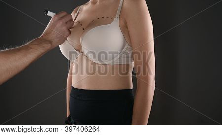 Doctor Drawing Marks On Female Breast Before Cosmetic Surgery Operation.