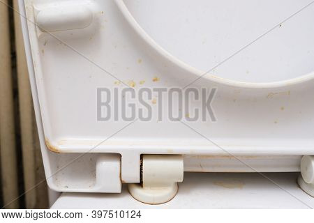 Dirty Unhygienic Toilet Seat Close Up At Public Restroom - Household And Bathroom Cleaning Concept.