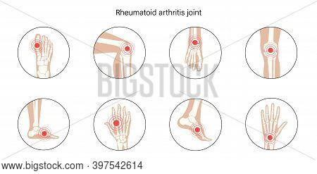 Rheumatoid Arthritis, Inflammation, Bone Disease Concept. Set With Spine, Knee, Wrist And Other Join