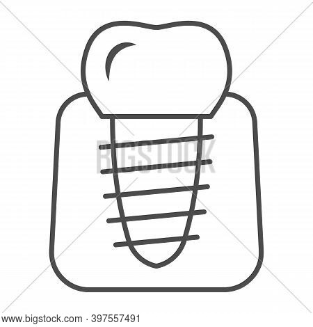 Dental Implant Thin Line Icon, International Dentist Day Concept, Stomatology Of Implant Sign On Whi