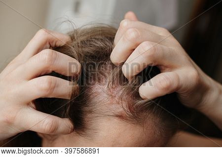 Psoriasis Vulgaris, Psoriatic Skin Disease In Head Hair, Skin Patches Are Typicaly Red, Itchy, And S