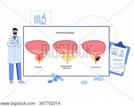 Prostate Disease Types. Prostatitis, Bph And Cancer. Doctor Consults And Set Treatment. Oncology, Tu