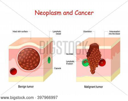 Cancer And Neoplasm. Comparison And Difference Between Malignant And Benign Tumor. Benign Tumor Has