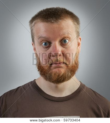 Bearded Man With Bulging Eyes
