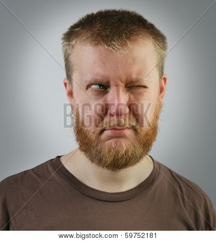 Man Looking Off To The Side With One Eye