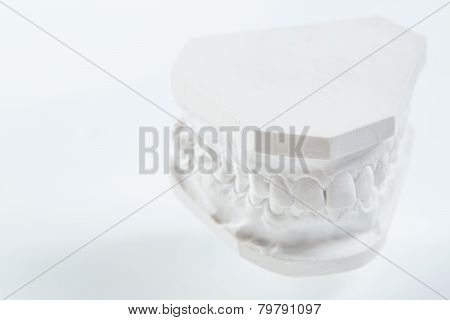 Dental casting gypsum model plaster cast stomatologic human jaws prothetic laboratory, technical shots poster