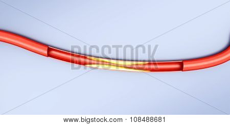 Arteriosclerosis.