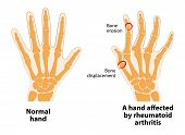 Normal hand and hand affected by rheumatoid arthritis. Rheumatoid Arthritis is an inflammatory type of arthritis. The body's immune system mistakenly attacks healthy tissue. poster