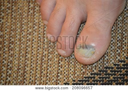 infected toe nail of big toe of right foot