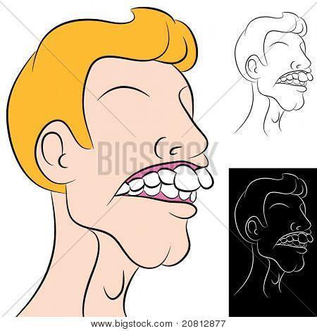 An image of a man with a dental overbite.
