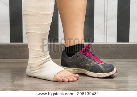Feet of a sport woman. In one foot have a sport shoe the other foot is injured