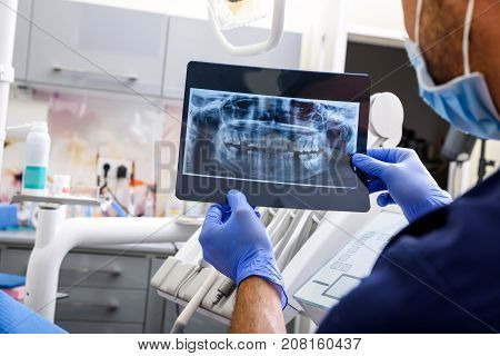 A Dentist explaining a XRAY image in a dental studio.