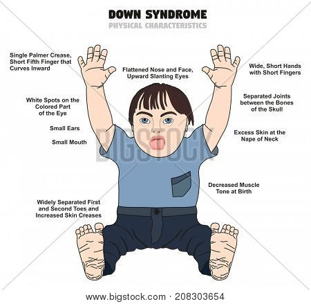 Down Syndrome Physical Characteristics