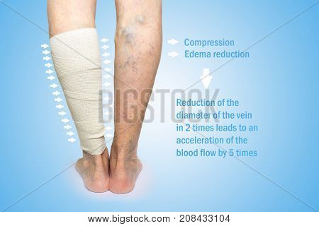 The female legs. Varicose veins. Phlebeurysm. Thrombophlebitis and elastic bandage