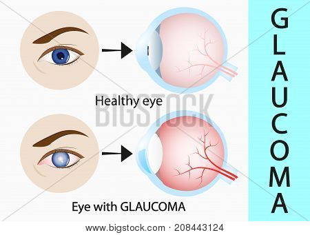 Glaucoma and healthy eye detailed structure. vector