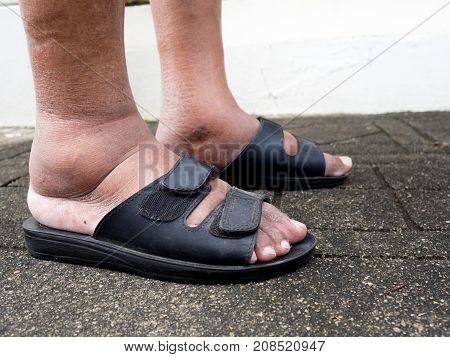 The feet of man with diabetes dull and swollen. Due to the toxicity of diabetes.