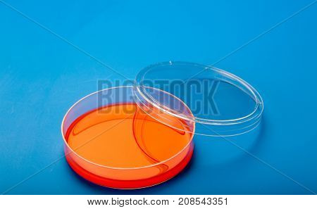 Petri dishes with blood agar
