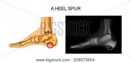 vector illustration of a heel spur. orthopedics