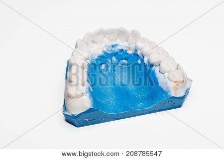 Dental Impression