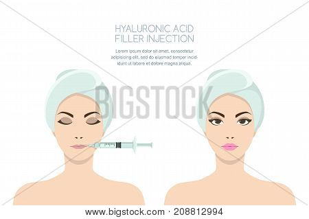 Beauty, Cosmetology Concept. Before And After Vector Illustration Of Woman Having Hyaluronic Filler
