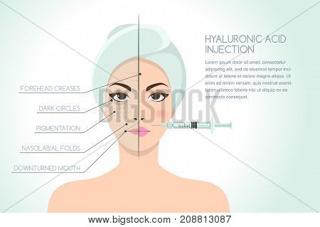 Before And After Vector Illustration Of Woman Having Hyaluronic Acid Facial Injection. Vector Infogr