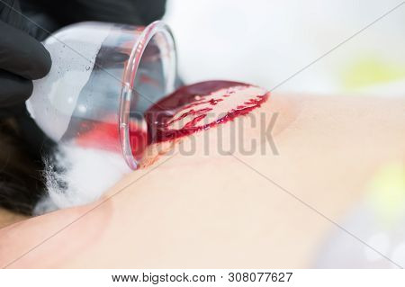 Close Up Of Young Person Doing Hijama Treatment. Blood Cleaning Process.