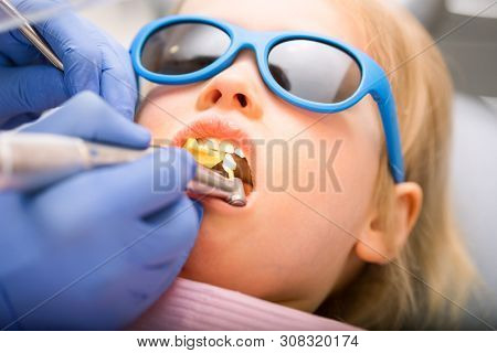 Dentist performing dental procedure to a little girl in pediatric dental clinic. Doctor using prophy brush on handpiece to polish filling. Calm child is sitting in a dental chair wearing sunglasses
