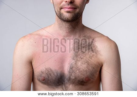Handsome Man With A Lot Of Black Hair On One Side Of The Chest And Another Part Of The Breast After