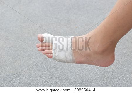 Injured Feet With Wounds.wound On The Foot Of Patient.first Aid Foot.
