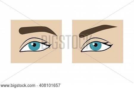 Correction Of Shape Of Eyebrows Before And After. Eyebrow Lift With Threads, Plastic Surgery, Compar