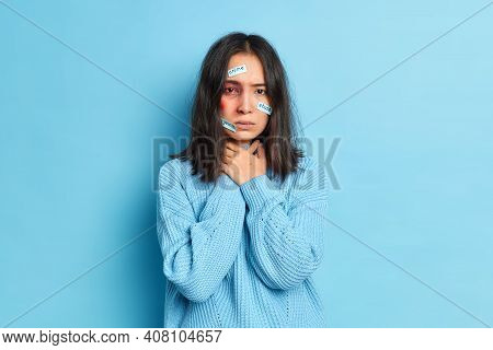Frustrated Beated Young Asian Woman Cannot Breath Well Has Bruised Eye Being Victim Of Cruel Person